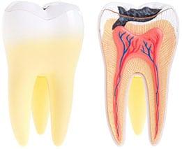 Dental Abscess   Dentist Warner