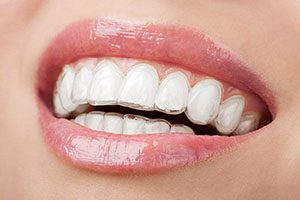 Invisalign | Dentist Warner