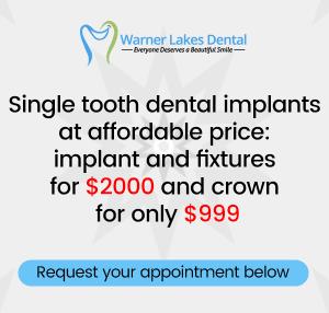 Warner Lakes Dental Dental Implants Specials Mobile