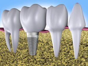 The Advantages of Modern Dental Implants