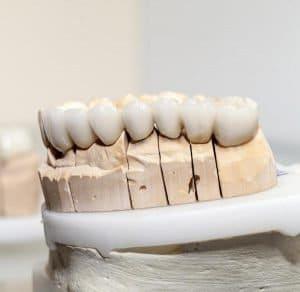 How Long Do Dental Crowns Last?-