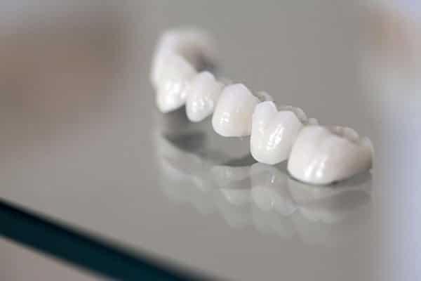 How Long Do Dental Crowns Last?