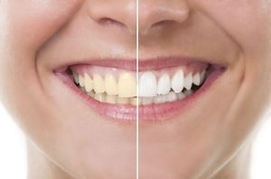 How To Whiten Yellow Teeth Effectively and Safely warner dentist