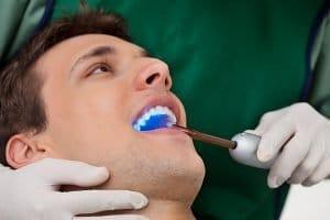 Warner Lakes Dental | Dental Sealants | Dentist Warner