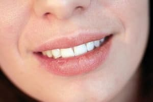 Warner Lakes Dental Dry Mouth | Dentist Warner