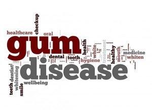 Gum Disease Can It Be Cured | Dentist Warner