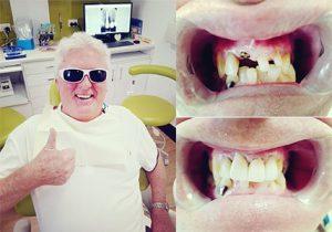 Dental-Implant-Happy-Customer | Dentist-Warner