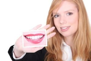 All About Porcelain Veneers | Dentist Warner