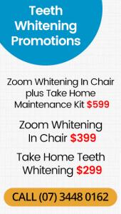 Teeth Whitening Promotions Banner Mobile Dentist Warner