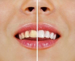 Your Ultimate Guide to Teeth Whitening in Warner Lakes