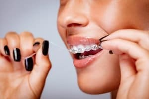 Warner Dentist Tips How can I keep my teeth clean when wearing braces