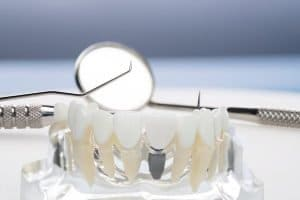 dental implants in albany creek
