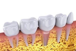 dental implants in chermside