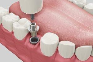 dental implants in sandgate