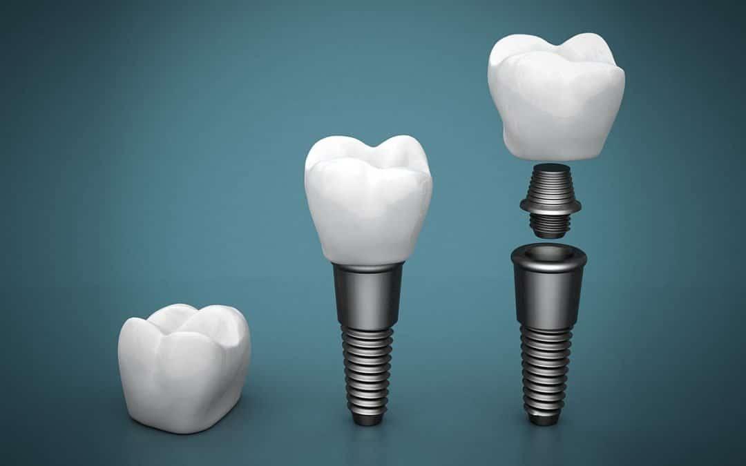 Top 3 Benefits of Getting Dental Implants in Warner Brisbane