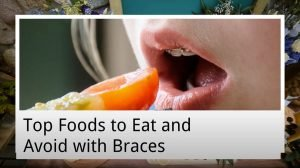 top foods to eat and avoid with braces from warner lakes dental